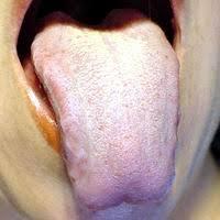 http://www.doctorfernandofuentes.cl/Imagenes/Lengua%25201.JPG