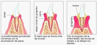 http://www.monografias.com/trabajos48/periodoncia/pe2.jpg