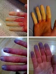 http://upload.wikimedia.org/wikipedia/en/f/fc/Raynaud%27s_Syndrome.jpg