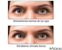 http://www.mdconsult.com/das/patient/body/0/0/10041/1087_es.jpg