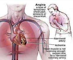 http://www.h4heart.com/h4heart/images/Article_Images/Angina-_part_1.jpg