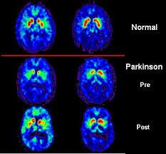 http://upload.wikimedia.org/wikipedia/commons/8/87/PET_scan_Parkinson%27s_Disease.jpg