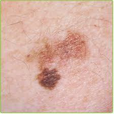 http://at-risc.org/images/Melanoma.jpg