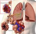 Emphysema - Medicalook