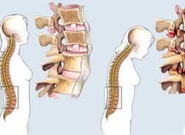 http://i.esmas.com/image/0/000/006/052/espondilitis-anquilosante-Ntnva.jpg