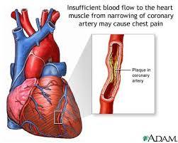 http://medicalimages.allrefer.com/large/angina.jpg
