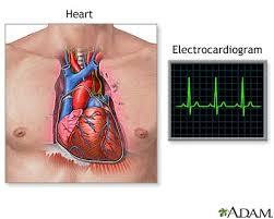 electrocardiogram 3