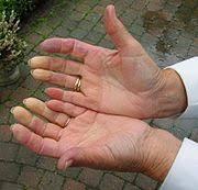 http://upload.wikimedia.org/wikipedia/commons/thumb/d/d5/Raynaud-hand2.jpg/180px-Raynaud-hand2.jpg