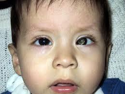 http://inctr.ctisinc.com:9000/sites/InCTR/RtbMex/Clinical%2520Photographs/estrabismo%2520y%2520leucocoria.JPG