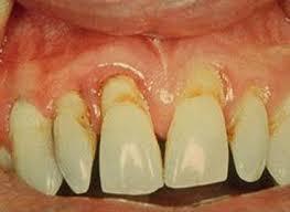 http://i.esmas.com/image/0/000/004/027/periodontitisNTnva.jpg