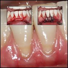 http://www.periodontitis.net/images/periodontitis.jpg