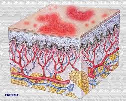 http://www.iqb.es/dermatologia/atlas/generalidades/eritema.jpg