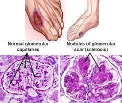 http://www.101healthsolution.com/images/diabetes-mellitus.JPG