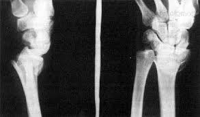 http://www.monografias.com/trabajos63/ortopedia-traumatologia/ortopedia-traumatologia_image020.jpg